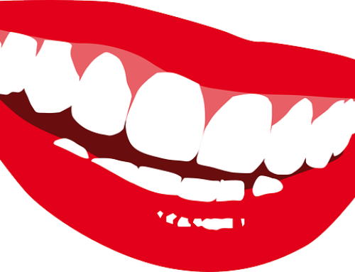 Are you a candidate for dental veneers?
